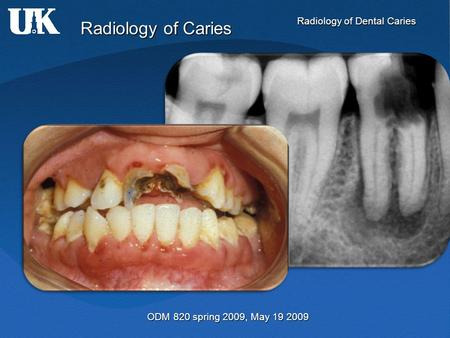 Radiology of Dental Caries Radiology of Caries ODM 820 spring 2009, May 19 2009.