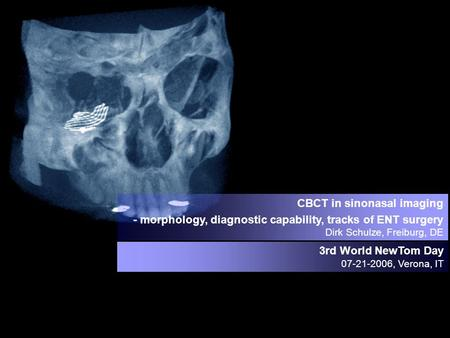 CBCT in sinonasal imaging - morphology, diagnostic capability, tracks of ENT surgery Dirk Schulze, Freiburg, DE 3rd World NewTom Day 07-21-2006, Verona,