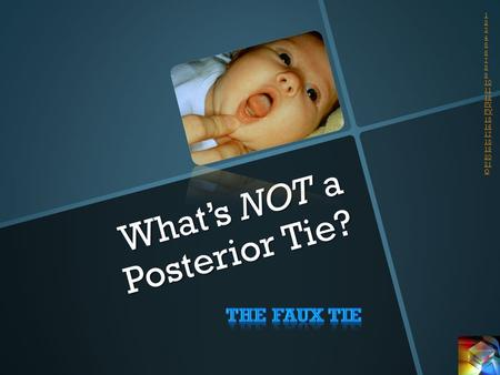 What's NOT a Posterior Tie? 1 2 3 4 5 6 7 8 9 10 11 12 PV FV 15 16 17 18 19 20 21 Q.