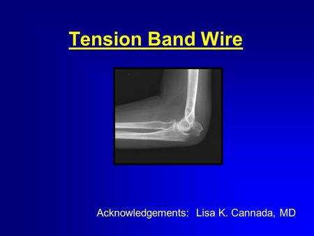 Tension Band Wire Acknowledgements: Lisa K. Cannada, MD.