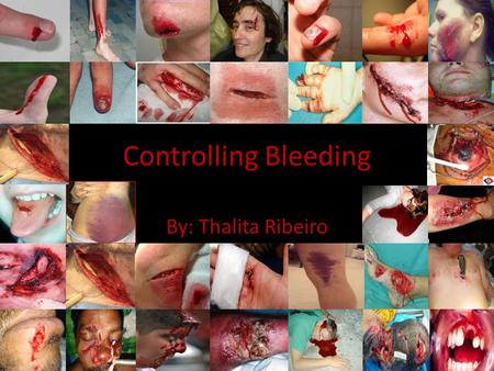 Controlling Bleeding By: Thalita Ribeiro. Bleeding Major bleeding can be life-threatening. Bleeding can be external or internal. You can bleed form your.