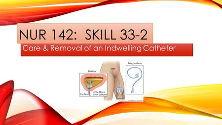 Care & Removal of an Indwelling Catheter
