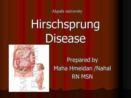 Prepared by Maha Hmeidan /Nahal RN MSN Hirschsprung Disease Alquds university.