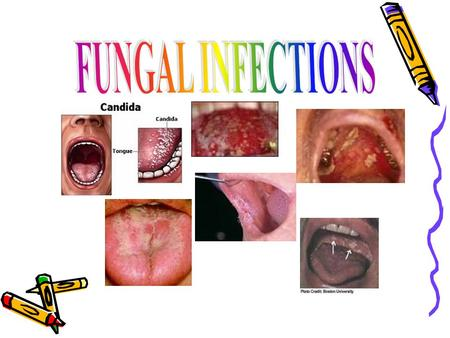 FUNGAL INFECTIONS The fungal infections of the oral mucosa most frequently occurred due to species of Candida. Candida is present as acommensal organism.