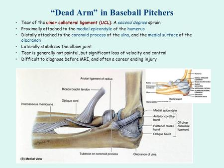 """Dead Arm"" in Baseball Pitchers Tear of the ulnar collateral ligament (UCL): A second degree sprain Proximally attached to the medial epicondyle of the."