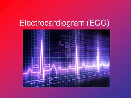 Electrocardiogram (ECG). What is an ECG? ECG: a graphical representation of the electrical activity of the heart. Each movement of electricity through.