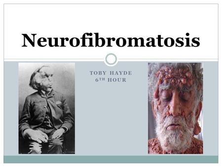 TOBY HAYDE 6 TH HOUR Neurofibromatosis. What is Neurofibromatosis? Neurofibromatosis (NF) is a genetic disorder that disturbs cell growth in the nervous.