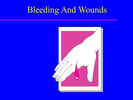 Bleeding And Wounds. Sources of External Bleeding u Arteries u Veins u Capillaries.