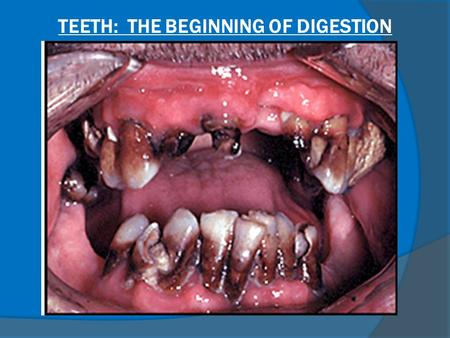TEETH: THE BEGINNING OF DIGESTION