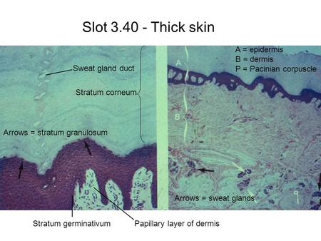 Slot 3.40 - Thick skin A = epidermis B = dermis P = Pacinian corpuscle Arrows = sweat glands Papillary layer of dermis Stratum corneum Sweat gland duct.