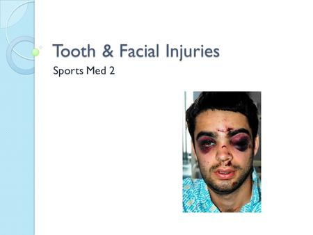 Tooth & Facial Injuries Sports Med 2. Jaw Fracture (collision sports) MOI ◦ Direct blow ◦ Most frequently at frontal angle S/S ◦ Deformity, pain when.