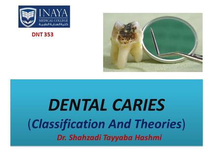 DENTAL CARIES (Classification And Theories) Dr. Shahzadi Tayyaba Hashmi DNT 353.