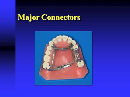 Major Connectors. Functions of a Major Connector  Unification  Partial denture acts as one unit  Connects various parts  Unification  Partial denture.