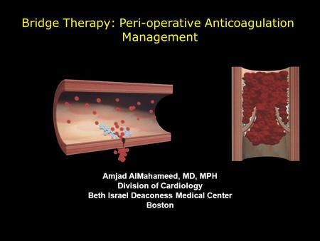 Bridge Therapy: Peri-operative Anticoagulation Management Amjad AlMahameed, MD, MPH Division of Cardiology Beth Israel Deaconess Medical Center Boston.