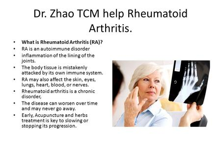Dr. Zhao TCM help Rheumatoid Arthritis. What is Rheumatoid Arthritis (RA)? RA is an autoimmune disorder inflammation of the lining of the joints. The body.