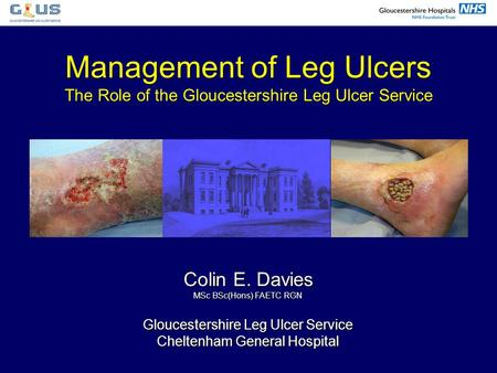 Colin E. Davies MSc BSc(Hons) FAETC RGN Gloucestershire Leg Ulcer Service Cheltenham General Hospital Management of Leg Ulcers The Role of the Gloucestershire.