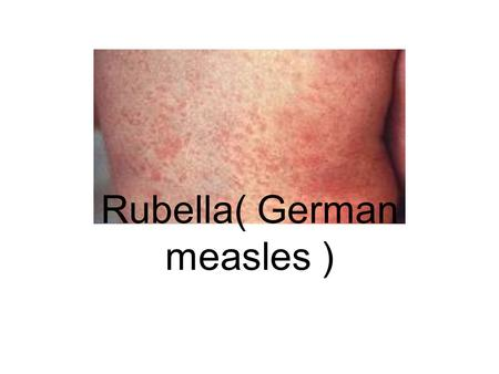 Rubella( German measles )