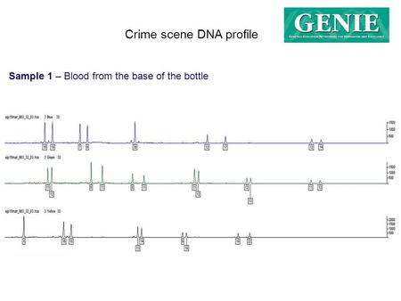 Crime scene DNA profile Sample 1 – Blood from the base of the bottle.
