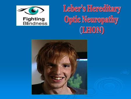 Leber's Hereditary – inherited from mitochondrial DNA Optic – affects the eye Neuropathy – disease/abnormality of nervous system.