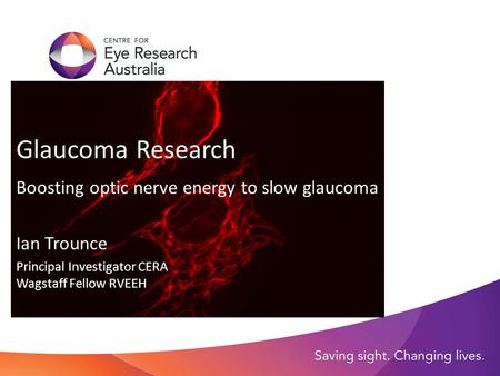 Glaucoma Research Boosting optic nerve energy to slow glaucoma Ian Trounce Principal Investigator CERA Wagstaff Fellow RVEEH.