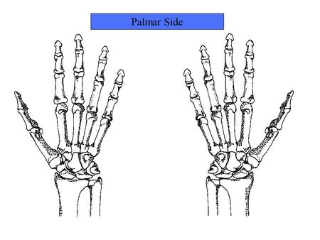 Palmar Side. Name this bone Trapezium Name this bone.