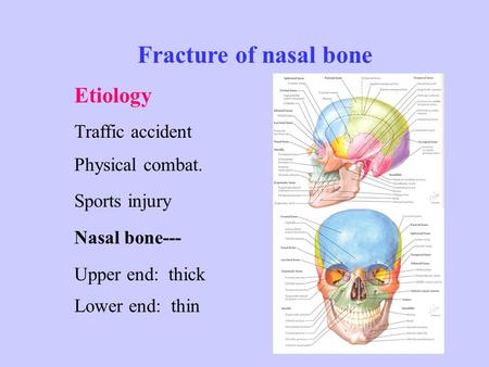 Fracture of nasal bone Etiology Traffic accident Physical combat. Sports injury Nasal bone--- Upper end: thick Lower end: thin.