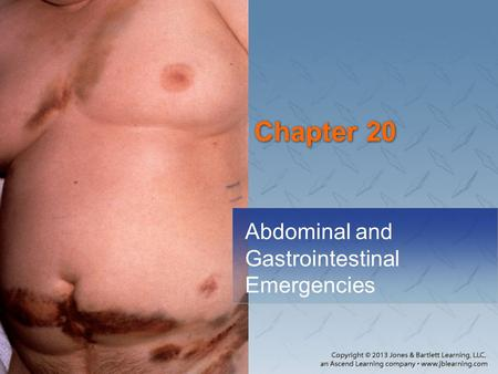 Abdominal <strong>and</strong> Gastrointestinal Emergencies