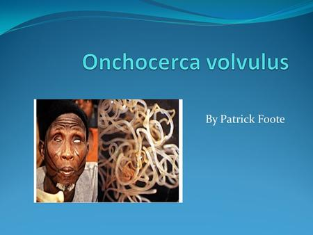"By Patrick Foote. Is a nematode. Causes Ochocerciasis or ""river blindness"" Nematode does not cause blindness, but its endosymbiont Wolbacia pipientis."