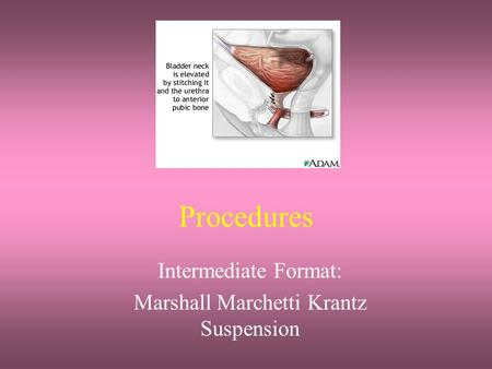 Intermediate Format: Marshall Marchetti Krantz Suspension