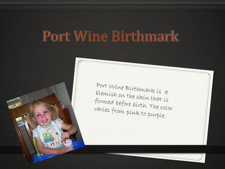 Port Wine Birthmark Port Wine Birthmark Port Wine Birthmark is a blemish on the skin that is formed before birth. The color varies from pink to purple.