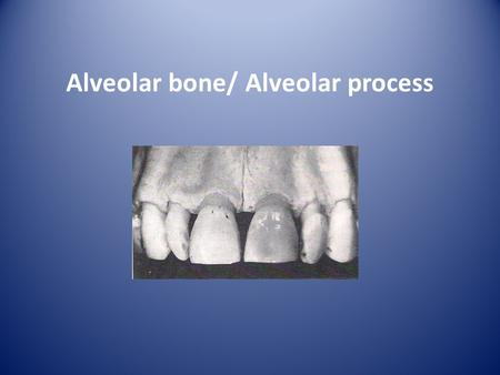 Alveolar bone/ Alveolar process. Is the portion of maxilla and mandible that forms and supports the tooth socket (alveoli). It forms when tooth erupts.