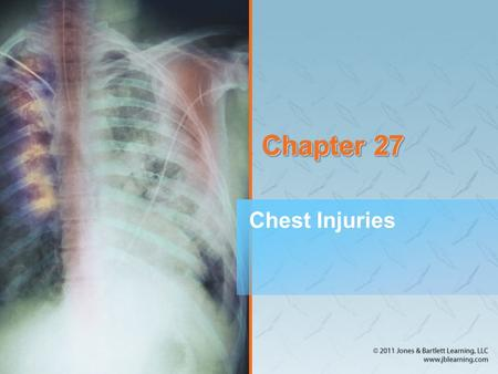 Chapter 27 Chest Injuries.