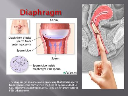 The diaphragm is a shallow silicone cup that blocks sperm from reaching the cervix with the help of spermicide. It is 82% effective against pregnancy.