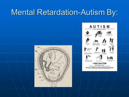 Mental Retardation-Autism By:. What is Mental Retardation? Mental retardation is described as a condition that is diagnosed before age 18, and includes.