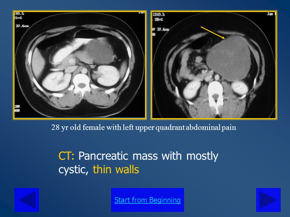 Start from Beginning CT: Pancreatic mass mostly cystic with peripheral calcifications 37 yr old female with early satiety and abdominal discomfort