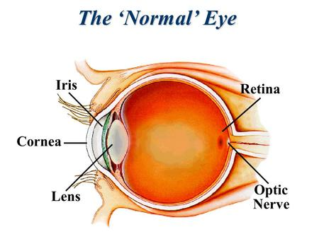Lens Cornea Iris Optic Nerve Retina The 'Normal' Eye.