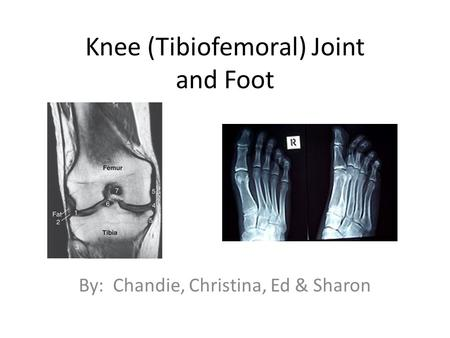 Knee (Tibiofemoral) Joint and Foot By: Chandie, Christina, Ed & Sharon.