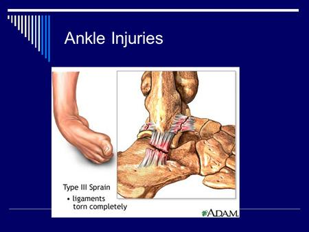 Ankle Injuries.  Ankle Sprains are the most common Orthopedic and Emergency room visit reason. 45% basketball, 31% soccer and 24% volleyball most common.