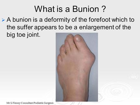 Mr S Finney Consultant Podiatric Surgeon What is a Bunion ?  A bunion is a deformity of the forefoot which to the suffer appears to be a enlargement of.
