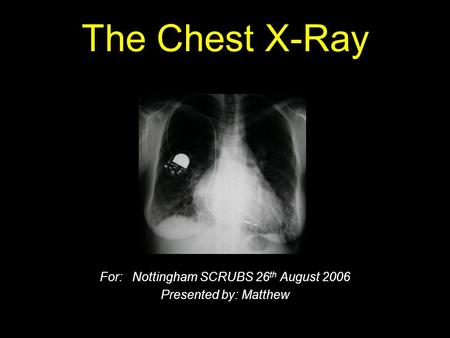 The Chest X-Ray For: Nottingham SCRUBS 26 th August 2006 Presented by: Matthew.