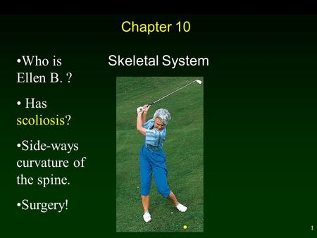 1 Chapter 10 Skeletal System Who is Ellen B. ? Has scoliosis? Side-ways curvature of the spine. Surgery!