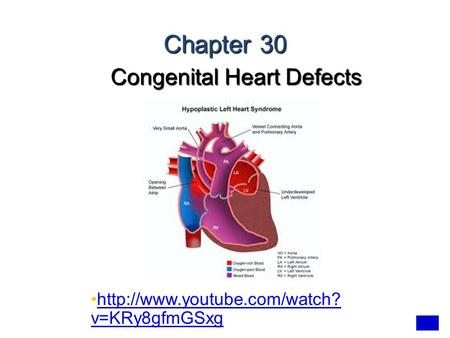 Congenital Heart <strong>Defects</strong>