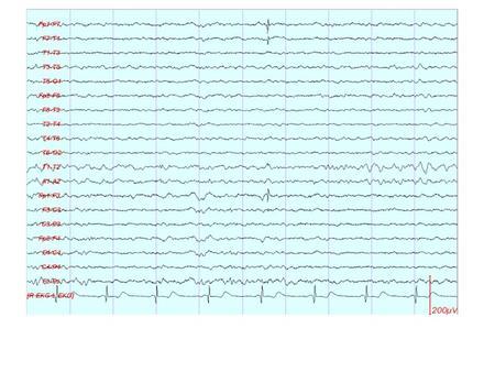 Picture 2. Electrode artifact at O1. The morphology is very unusual for any cerebral waveform, and the distribution is limited to a single electrode.