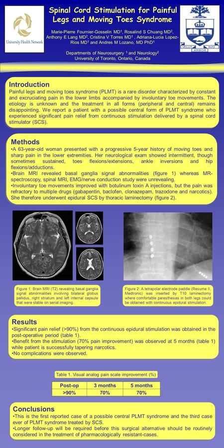 Spinal Cord Stimulation for Painful Legs and Moving Toes Syndrome Marie-Pierre Fournier-Gosselin MD 1, Rosalind S Chuang MD 2, Anthony E Lang MD 2, Cristina.