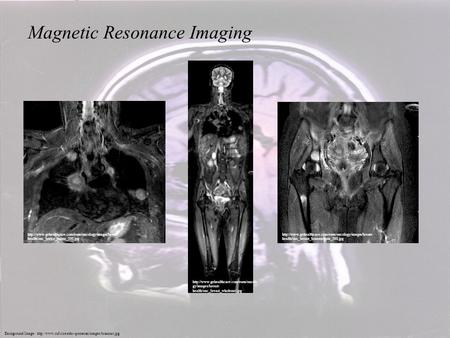 Background Image:  Magnetic Resonance Imaging  gy/images/breast-