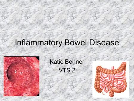 Inflammatory Bowel Disease Katie Benner VTS 2. Crohns & UC Complex disorders & wide variation in clinical practice Chronic idiopathic inflammaotry intestinal.