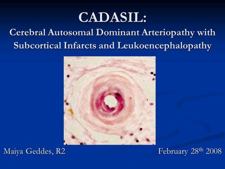 CADASIL: Cerebral Autosomal Dominant Arteriopathy with Subcortical Infarcts and Leukoencephalopathy Maiya Geddes, R2 February 28 th 2008.