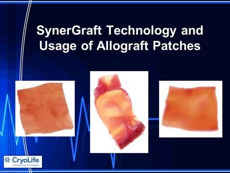SynerGraft Technology and Usage of Allograft Patches.