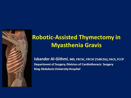 Robotic-Assisted Thymectomy in Myasthenia Gravis Iskander Al-Githmi, MD, FRCSC, FRCSC (Ts&CDs), FACS, FCCP Department of Surgery. Division of Cardiothoracic.