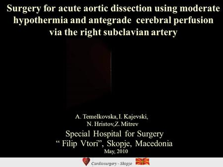 Cardiosurgery - Skopje Surgery for acute aortic dissection using moderate hypothermia and antegrade cerebral perfusion via the right subclavian artery.
